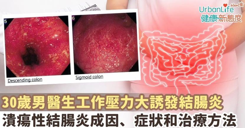 【潰瘍性結腸炎成因】30歲男醫生工作壓力爆煲誘發結腸炎 一文看清潰瘍性結腸炎成因、症狀和治療方法
