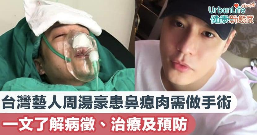 【鼻瘜肉症狀】台灣藝人周湯豪患鼻瘜肉需做手術 一文了解病徵、治療及預防