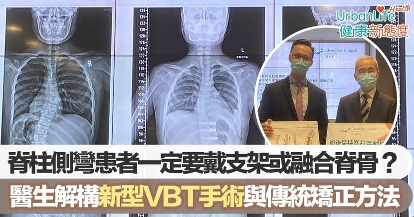 【脊柱側彎治療】患者一定要戴支架或融合脊骨?骨科醫生解構新型VBT手術與傳統矯正方法