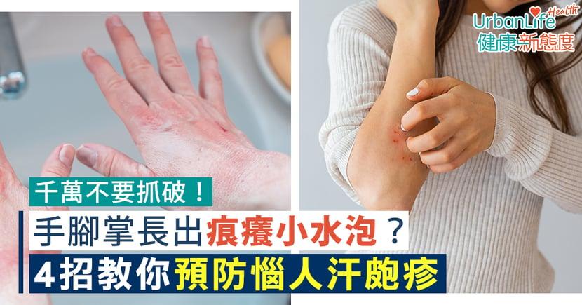 【汗皰疹藥膏】千萬不要抓破!手腳掌長出痕癢小水泡?4招教你預防惱人汗皰疹