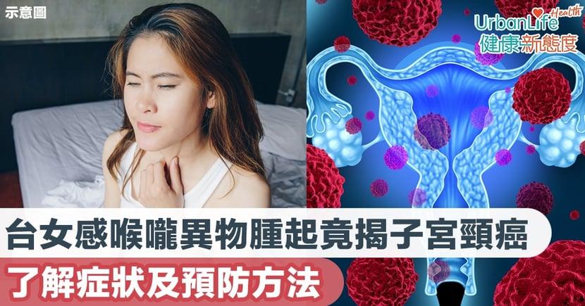 【子宮頸癌症狀】56歲女子感喉嚨異物腫起竟揭子宮頸癌末期 了解症狀及預防方法