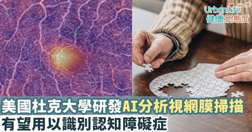 【認知障礙檢測】美國杜克大學研發AI分析視網膜掃描 有望用以識別認知障礙症