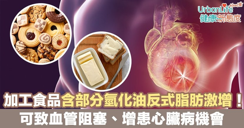 【反式脂肪】加工食品含部分氫化油反式脂肪激增!可致血管阻塞、增患心臟病機會