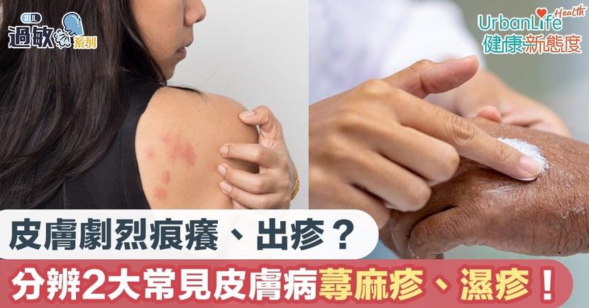 【皮膚敏感】皮膚劇烈痕癢、出疹?兩大常見皮膚病蕁麻疹、濕疹如何分辨?