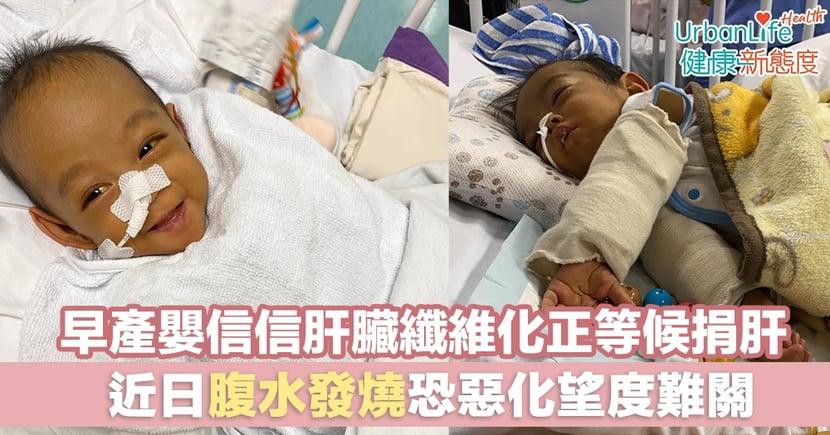 【器官捐贈】早產嬰信信肝臟纖維化正等候捐肝 近日腹水發燒恐惡化