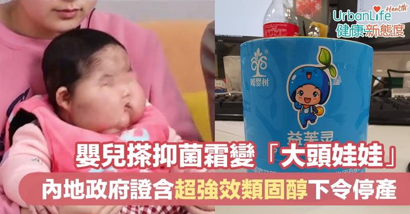【類固醇副作用】嬰兒搽抑菌霜變「大頭娃娃」 內地政府證含超強效類固醇下令停產