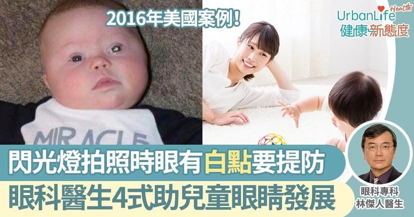 【兒童視力檢查】閃光燈拍照時發現嬰兒眼睛有白點要提防!眼科醫生4式助兒童眼睛發展
