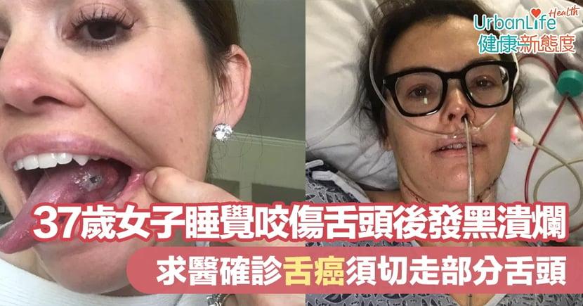 【舌癌症狀】37歲女子睡覺咬傷舌頭後發黑潰爛 求醫確診舌癌須切走部分舌頭