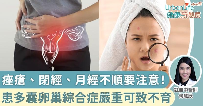 【多囊卵巢綜合症中醫】痤瘡、閉經、月經不順要注意!患多囊卵巢綜合症嚴重可致不育