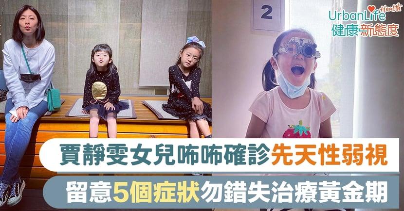 【弱視成因】賈靜雯女兒咘咘確診先天性弱視 留意5個症狀勿錯失治療黃金期