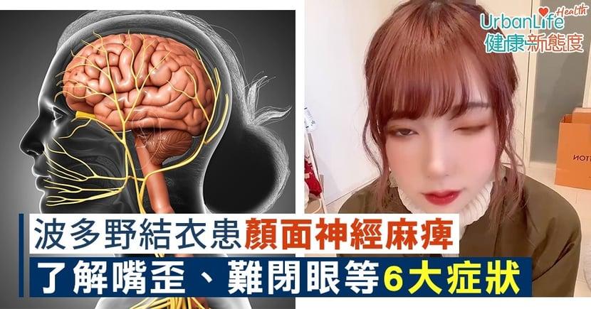 【面癱成因】波多野結衣患顏面神經麻痺 了解嘴歪、流口水等6大症狀