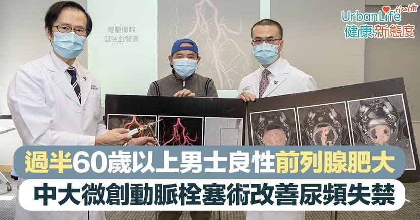 【前列腺肥大】過半60歲以上男士前列腺肥大 中大推微創動脈栓塞術改善尿頻失禁