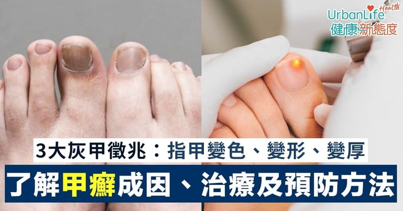 【灰甲治療】3大灰甲徵兆:指甲變色、變形、變厚 了解甲癬成因、治療及預防方法