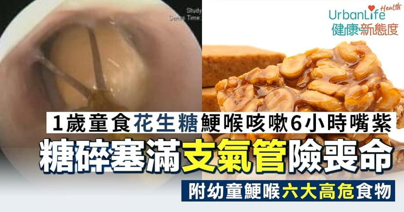 【幼兒鯁喉】1歲童食花生糖後咳嗽6小時嘴唇發紫 求醫發現糖果塞滿支氣管險喪命