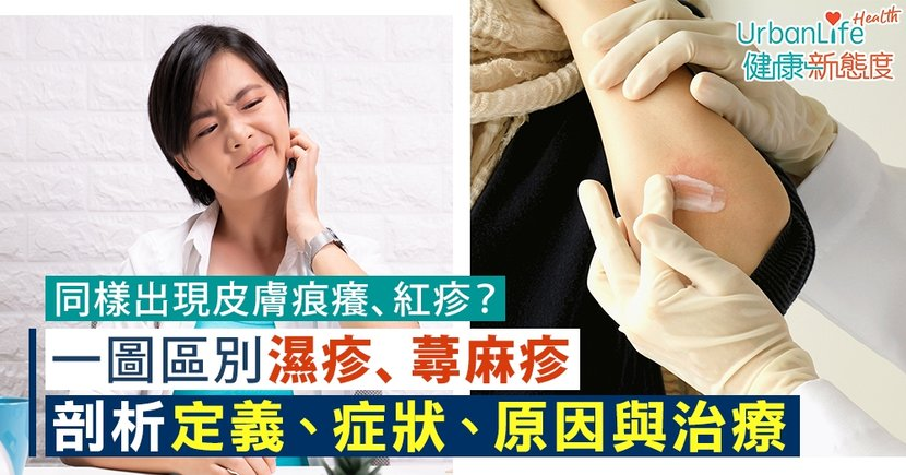 【濕疹VS蕁麻疹】同樣出現皮膚痕癢、紅疹?一圖區別兩者定義、症狀、原因與治療