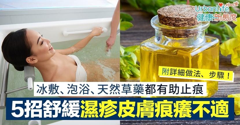 【濕疹止痕】5招立即舒緩皮膚痕癢不適 冰敷、泡浴、天然草藥都有幫助