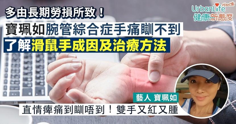 【腕管綜合症治療】《大步走》寶珮如腕管綜合症手痺痛瞓不到 了解滑鼠手成因及治療方法