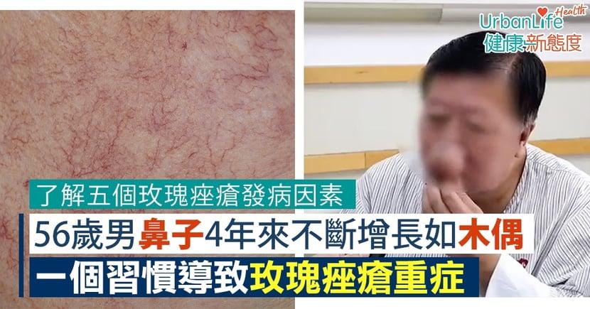 【玫瑰痤瘡成因】56歲男鼻子4年來不斷增長如木偶 一個習慣導致玫瑰痤瘡重症(附發病因素)