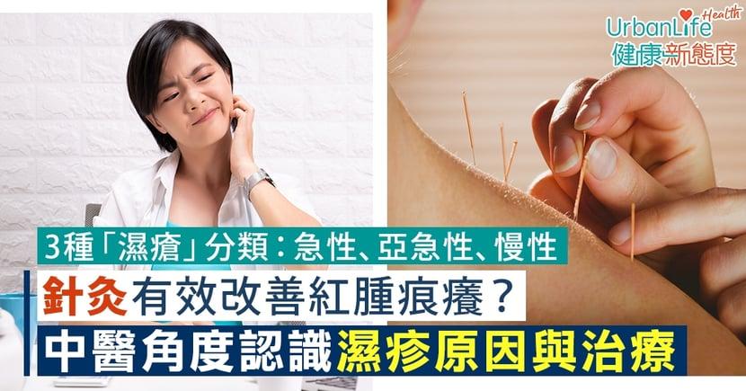 【濕疹中醫】針灸有效改善紅腫痕癢?認識濕疹原因、分類、辨證與治療