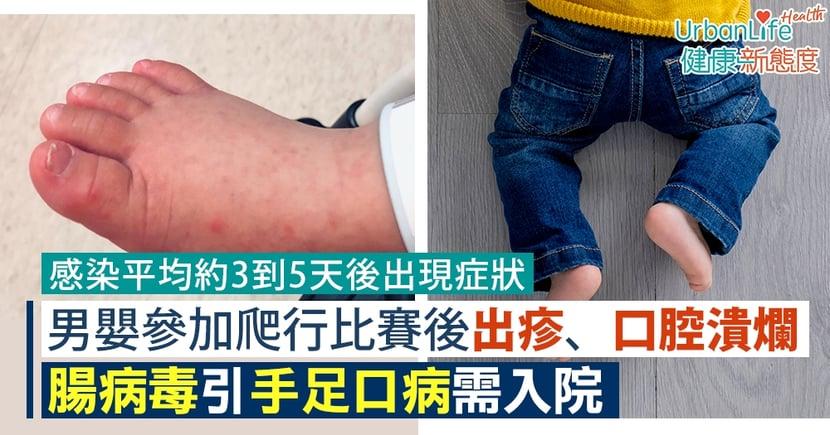 【手足口病症狀】男嬰參加爬行比賽後出紅疹、口腔潰爛 腸病毒致手足口病需入院