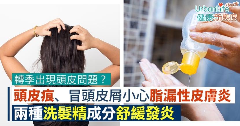 【頭皮痕癢洗頭水】換季頭皮痕、冒頭皮屑小心脂漏性皮膚炎 兩種洗髮精成分舒緩發炎