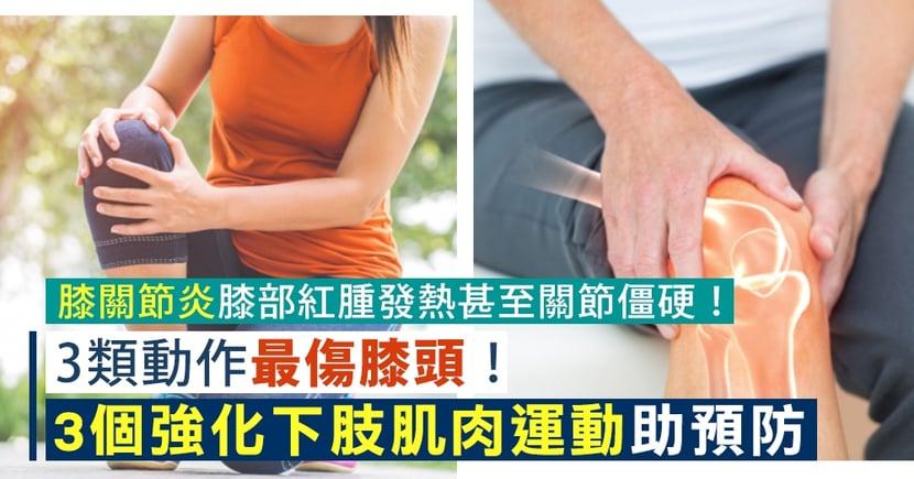 【膝蓋酸痛】3類動作最傷膝頭!3個強化下肢肌肉運動預防膝關節炎