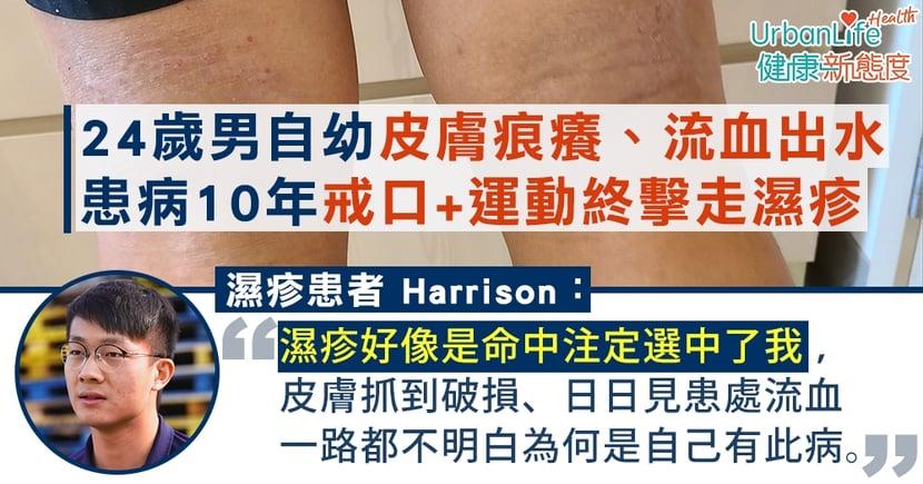 【濕疹戒口】24歲男自幼皮膚痕癢、流血出水 患病10年戒口+運動終擊走濕疹