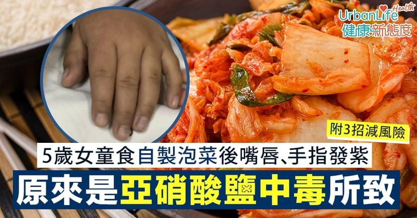 【泡菜壞處】5歲女童食自製泡菜後嘴唇、手指發紫 原來是亞硝酸鹽中毒所致