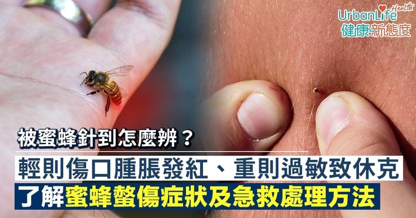 【蜜蜂螫傷處理】被蜜蜂針到怎麼辨?了解症狀及急救處理方法