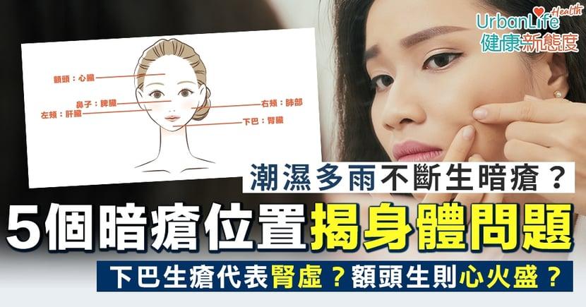 【暗瘡位置】下巴生瘡代表腎虛?額頭生則心火盛?5個暗瘡位置揭示身體問題