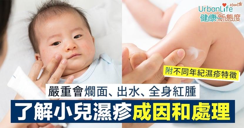 【BB濕疹原因】嚴重會爛面、出水、全身紅腫 了解小兒濕疹成因和處理