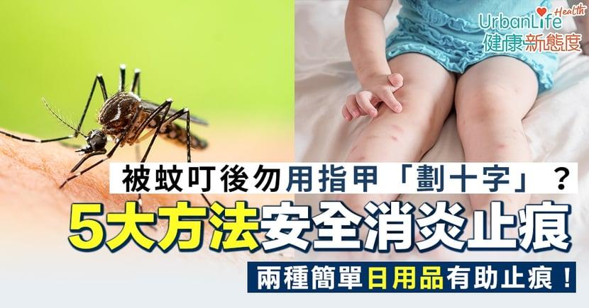 【蚊叮止痕】被蚊叮後勿用指甲「劃十字」?5大方法安全消炎止痕