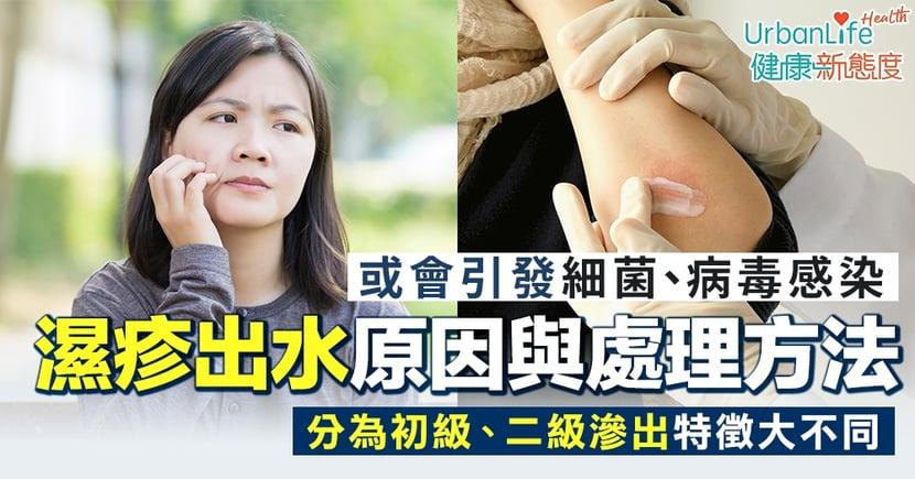 【濕疹出水】或會引發細菌、病毒感染 2大原因與舒緩處理方法