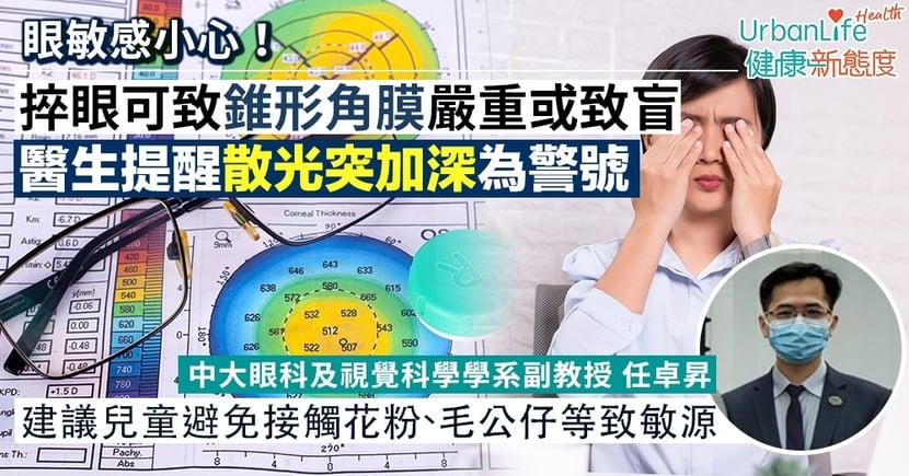 【錐形角膜成因】捽眼可致錐形角膜嚴重或致盲 醫生提醒散光突加深為警號