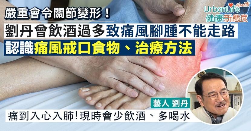 【痛風飲食】劉丹曾飲酒過多致痛風腳腫不能走路 認識痛風戒口食物、治療方法