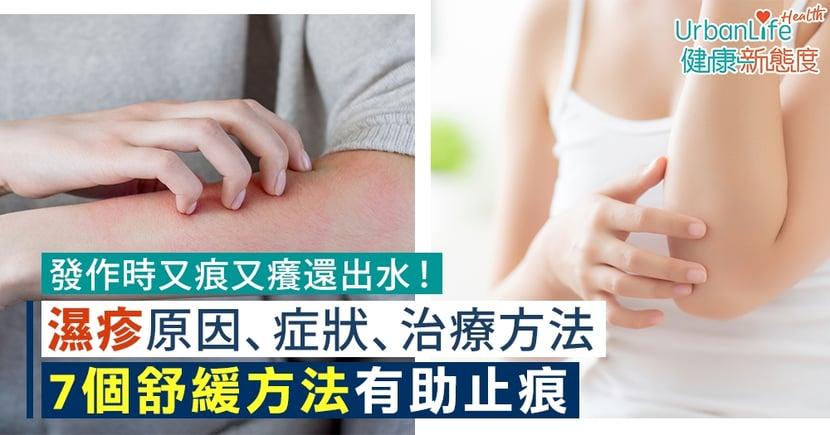 【濕疹成因】發作時又痕又痛很痛苦!有可能斷尾嗎?了解原因、症狀、治療方法