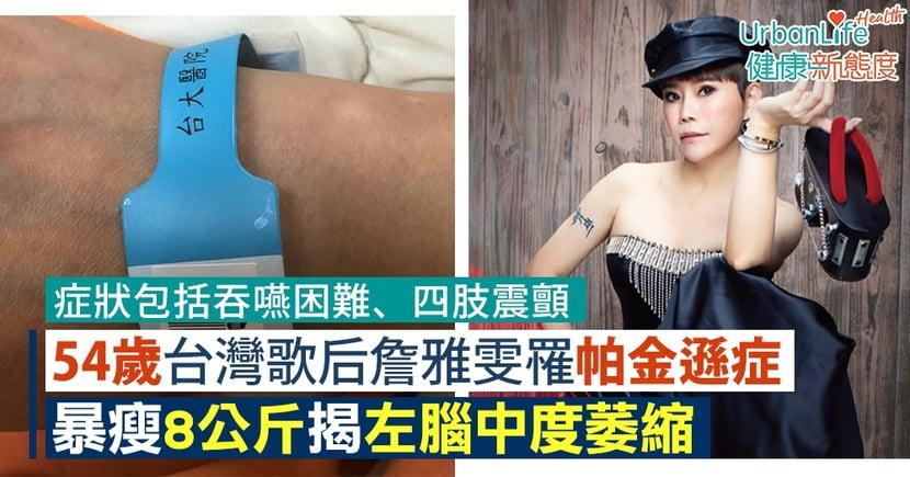 【帕金遜症病徵】54歲台灣歌后詹雅雯罹帕金遜症 暴瘦8公斤揭左腦中度萎縮