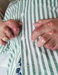 廣州27歲男子小俊(化名)雙手出現黃白色的痛風石。