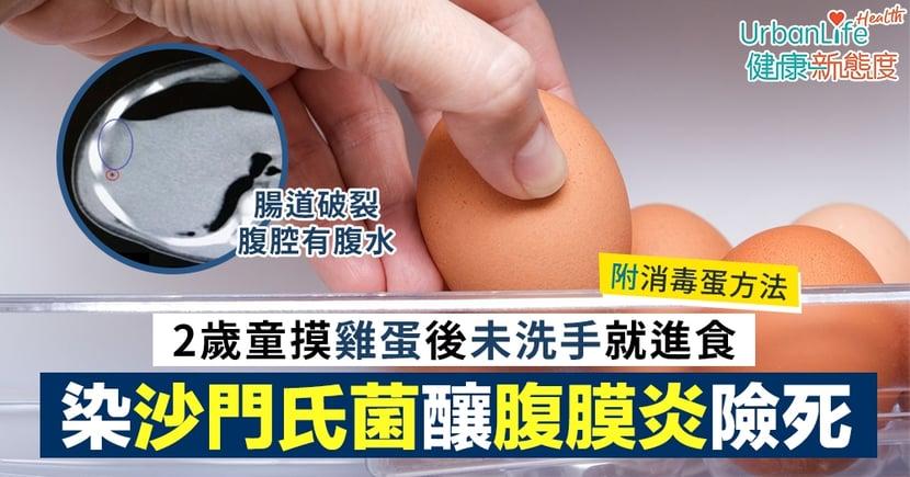 【沙門氏菌】2歲童摸雞蛋後未洗手就進食 染沙門氏桿菌釀腹膜炎險死(附消毒蛋方法)