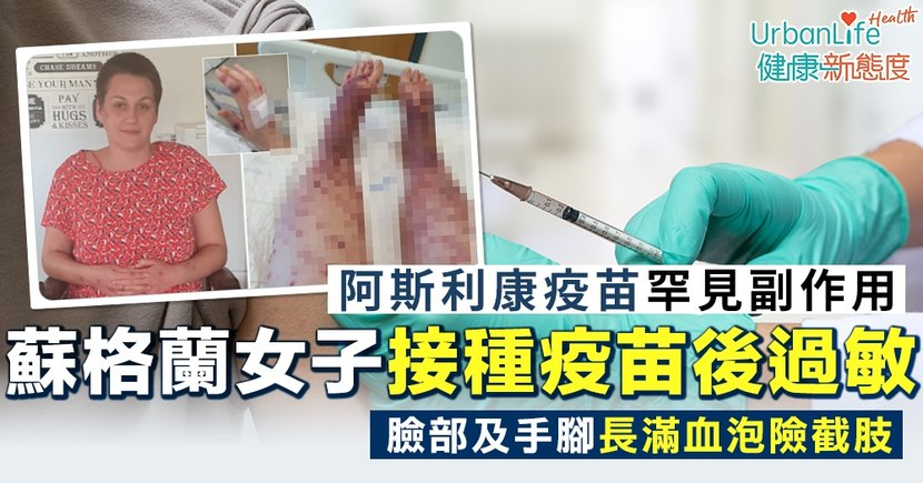 【阿斯利康疫苗】蘇格蘭女子接種新冠疫苗後過敏 臉部及手腳長滿血泡險截肢