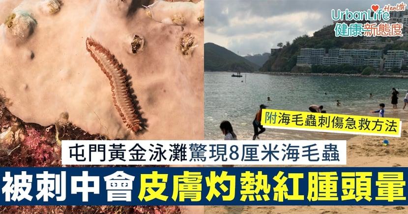 【海毛蟲傷口處理方法】屯門黃金泳灘驚現8厘米海毛蟲 若被刺中會皮膚灼熱紅腫頭暈