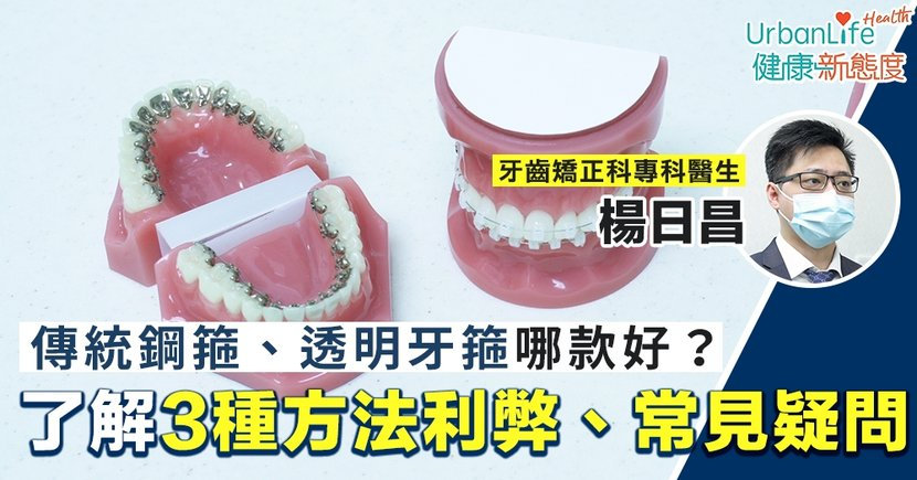 【箍牙比較】傳統鋼箍、透明牙箍哪款好?了解常見箍牙疑問、3種方法利弊