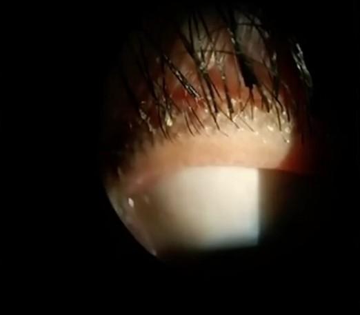 蠕形蟎眼瞼緣炎多發於眼部衛生不佳的人。