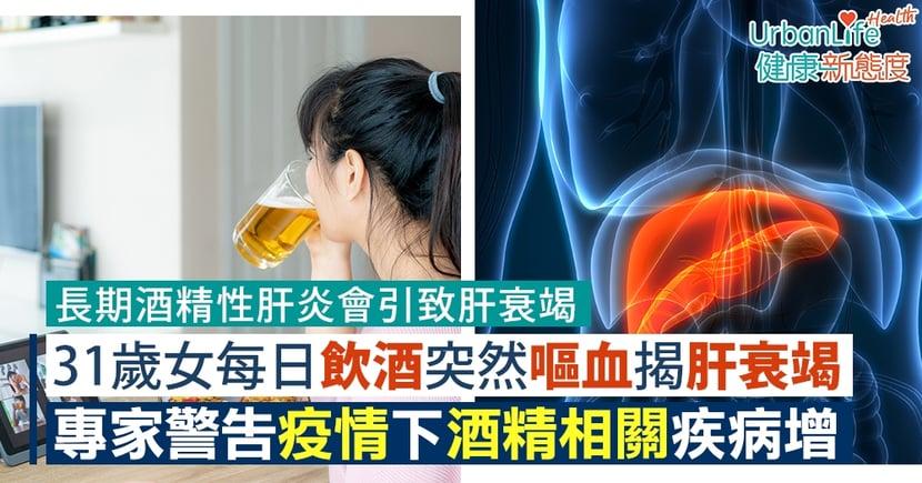 【肝衰竭原因】31歲女每日飲酒突然嘔血揭肝衰竭 專家警告疫情下酒精相關疾病增