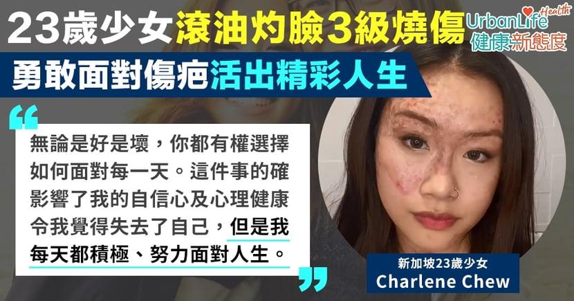 【勵志人生】新加坡23歲少女滾油灼臉致3級燒傷 勇敢面對傷疤活出精彩人生