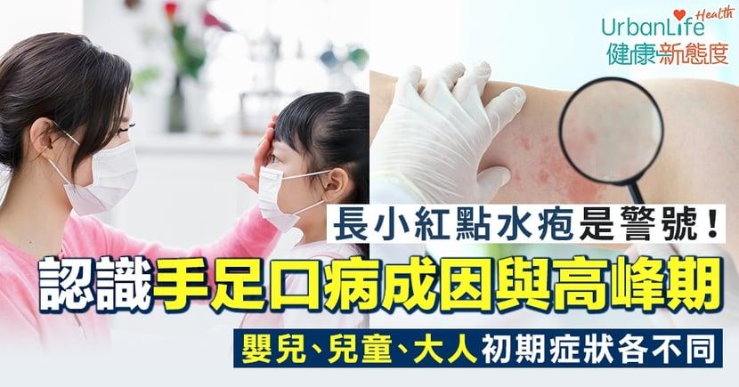 【手足口病初期症狀】長小紅點水疱是警號!認識手足口病成因、嬰兒/兒童/大人不同症狀