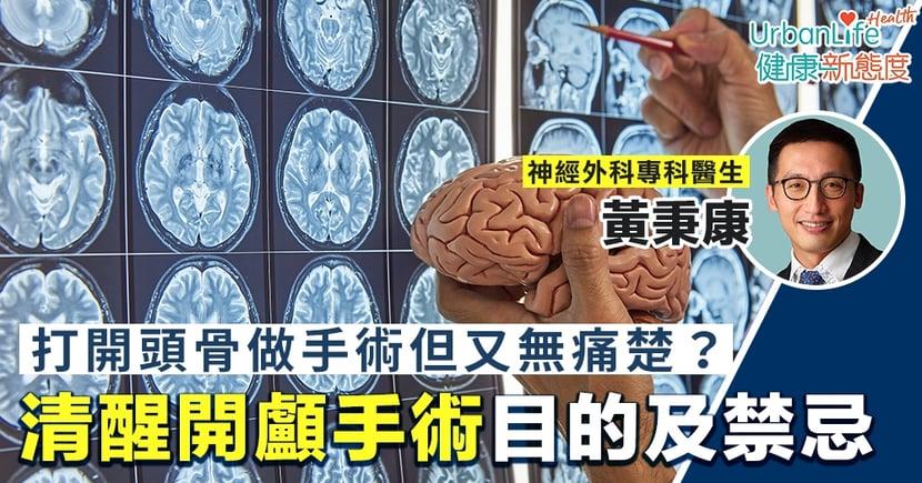【開腦手術】打開頭骨做手術但又無痛楚?解構清醒開顱手術目的及禁忌
