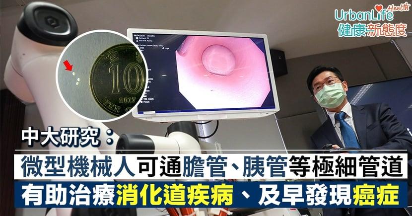 【膽管結石手術】中大研微型機械人可通膽管、胰管等極細管道 有助治療消化道疾病、及早發現癌症
