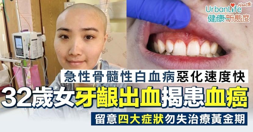 【急性骨髓性白血病】32歲女牙齦出血易疲累揭患血癌 留意四大症狀勿失治療黃金期