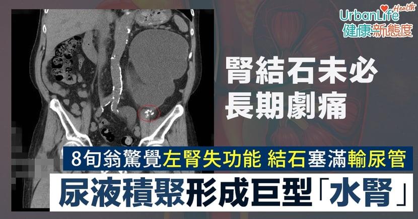 【腎結石症狀】腎結石未必長期痛 8旬翁結石塞滿輸尿管形成巨型水腎失功能